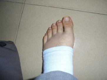 2017 10 2 bandaged foot