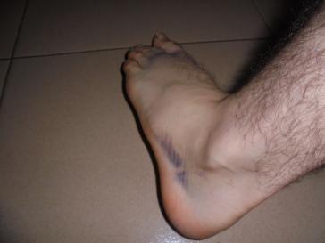 2017 10 2 swollen foot